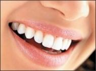 Tratarea gingivitei si parodontitei
